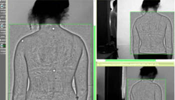 scoliosis_feat